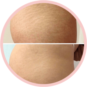 Procedimento de Flow duo stretch marks