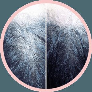 Procedimento Flow Duo Hair