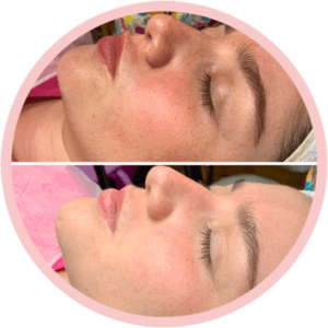 Procedimento de Shine Flow Face